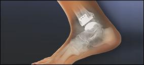 ayak_bilek protezi