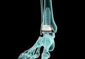 Ayak Bileği Protezi Ameliyatını Yapan En İyi Doktor