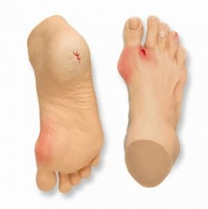 Diyabetik Ayak Yaraları